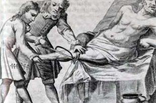 Amputación de una pierna a bordo